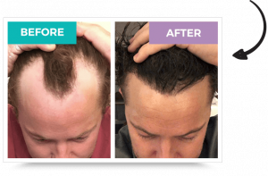How Much Does A Hair Transplant Cost